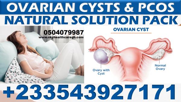 Ovarian Cysts treatment