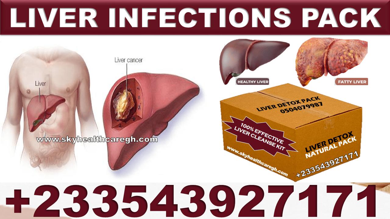 Best Herbal Medicine for Liver Infection in Ghana