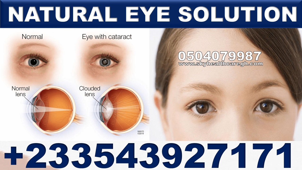 Natural Eye Solutions Pack