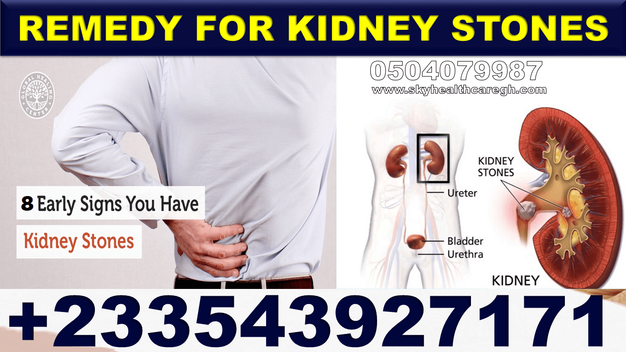 Natural Solution for Kidney Stones