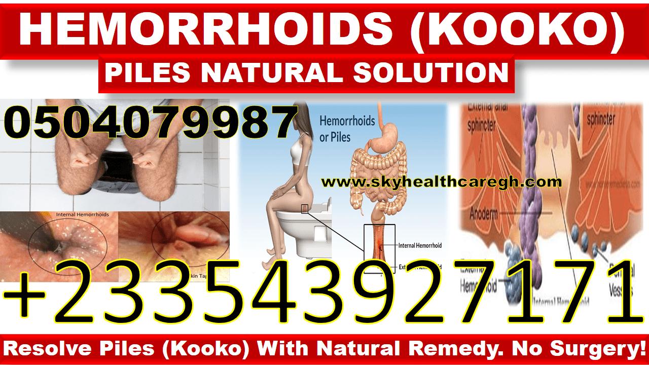 hemorrhoids natural solution