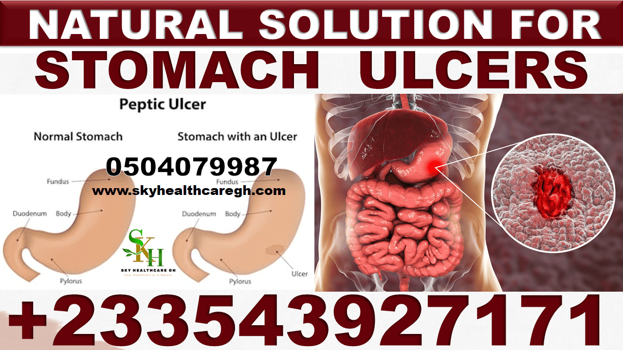 Natural Treatment for Ulcers pack