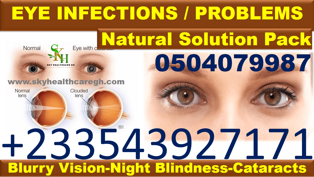 Natural Solution for Eye Infections in Ghana