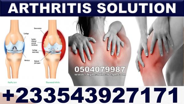 Natural Treatment for Psoriatic Arthritis