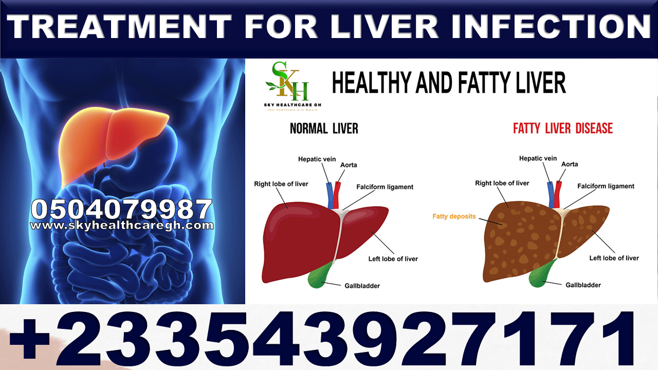 Solution for Liver Infection in Ghana