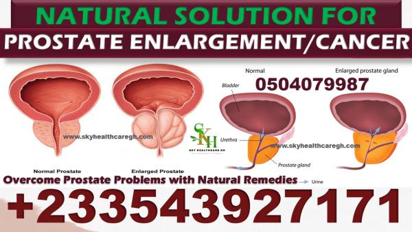 Natural Solution for Prostate Cancer