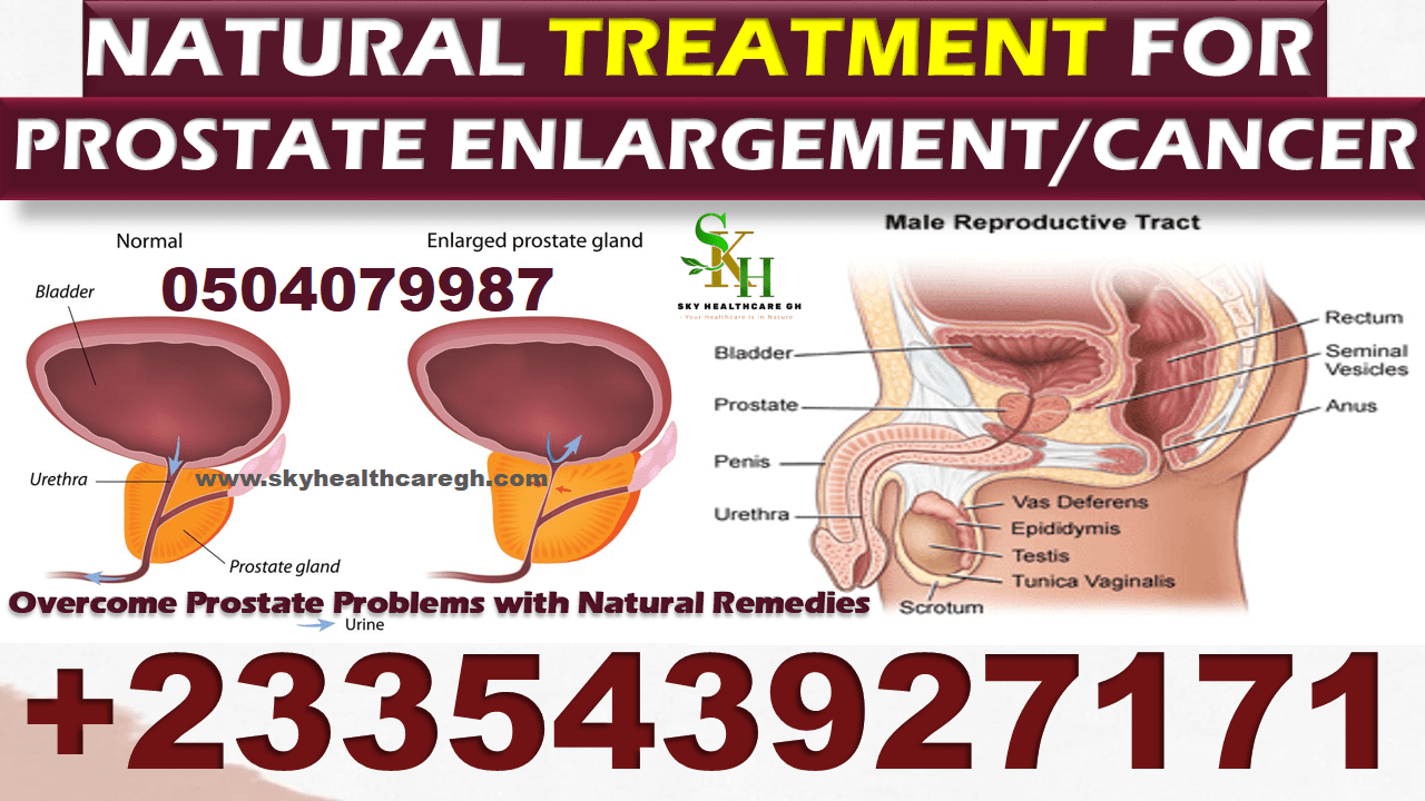 Natural Treatment for Enlarged Prostate Pack