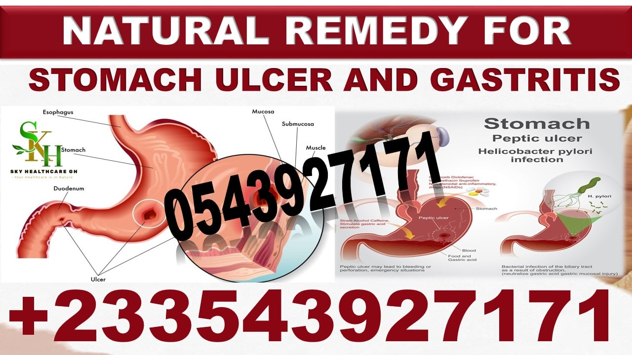 Remedies for Ulcer in Ghana