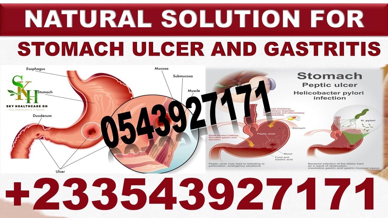 Best Medicine for Ulcer in Ghana