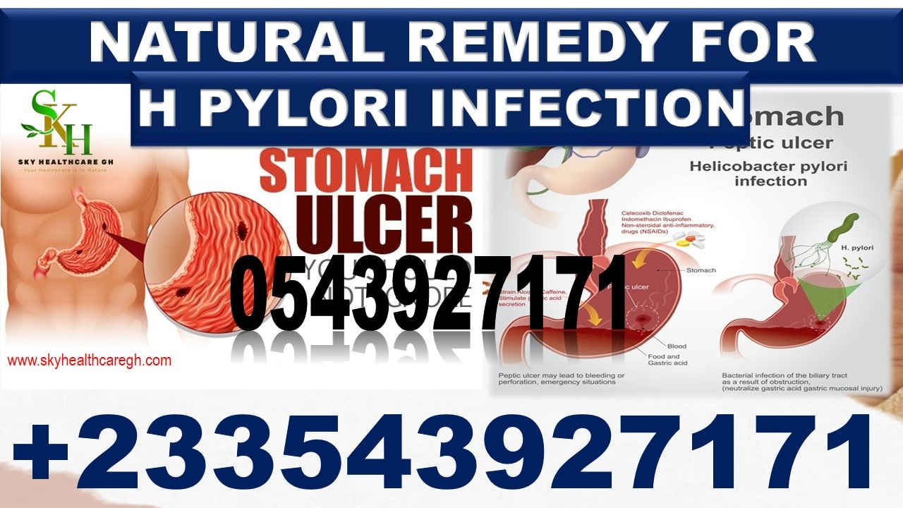 Herbal Remedy for H Pylori Infection