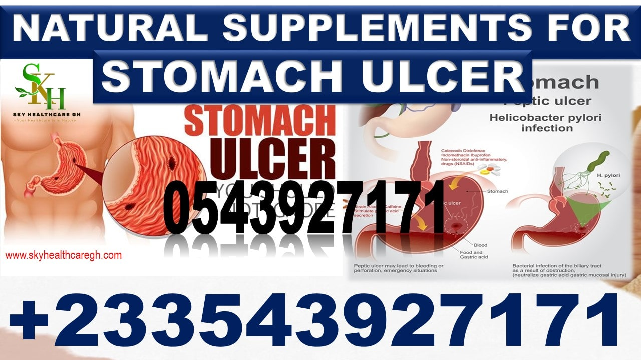 Natural Products for Ulcer in Ghana