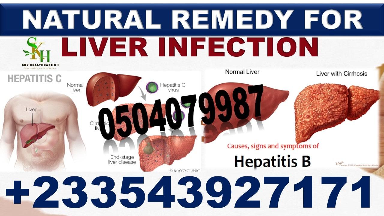 Liver Disorder Herbal Medicine in Ghana